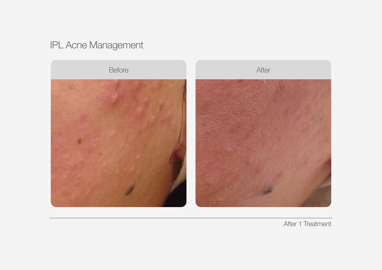 IPL-Acne-Management-Before-After-01