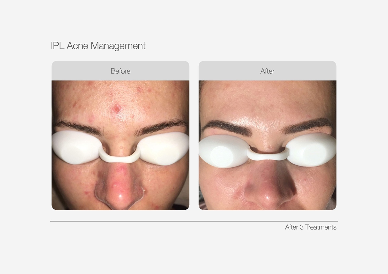 IPL-Acne-Management-Before-After-02