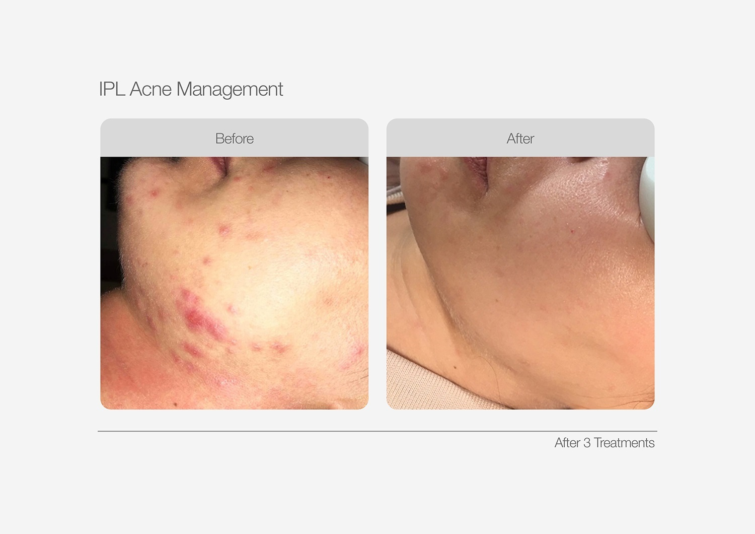 IPL-Acne-Management-Before-After-03