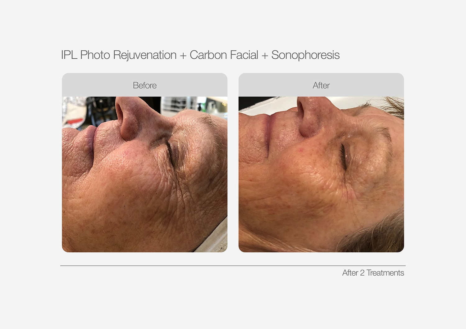IPL-Photo-Rejuvenation-Before-After-01