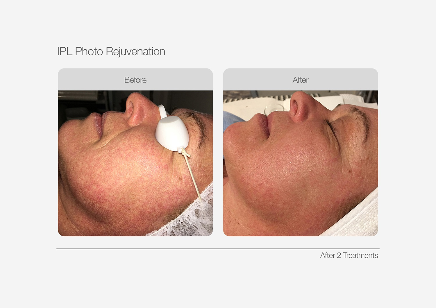 IPL-Photo-Rejuvenation-Before-After-02