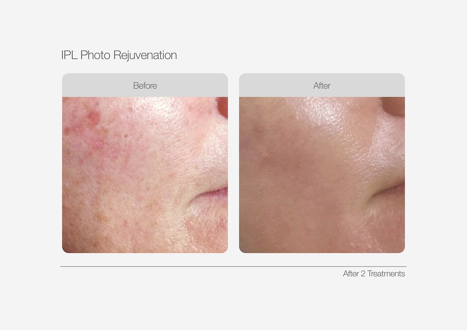 IPL-Photo-Rejuvenation-Before-After-03