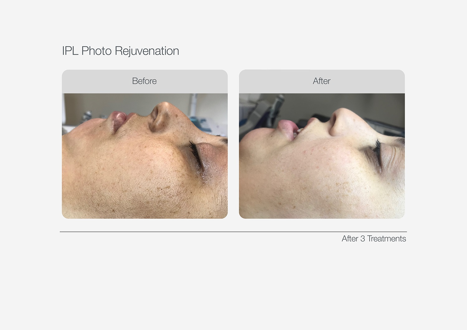 IPL-Photo-Rejuvenation-Before-After-06