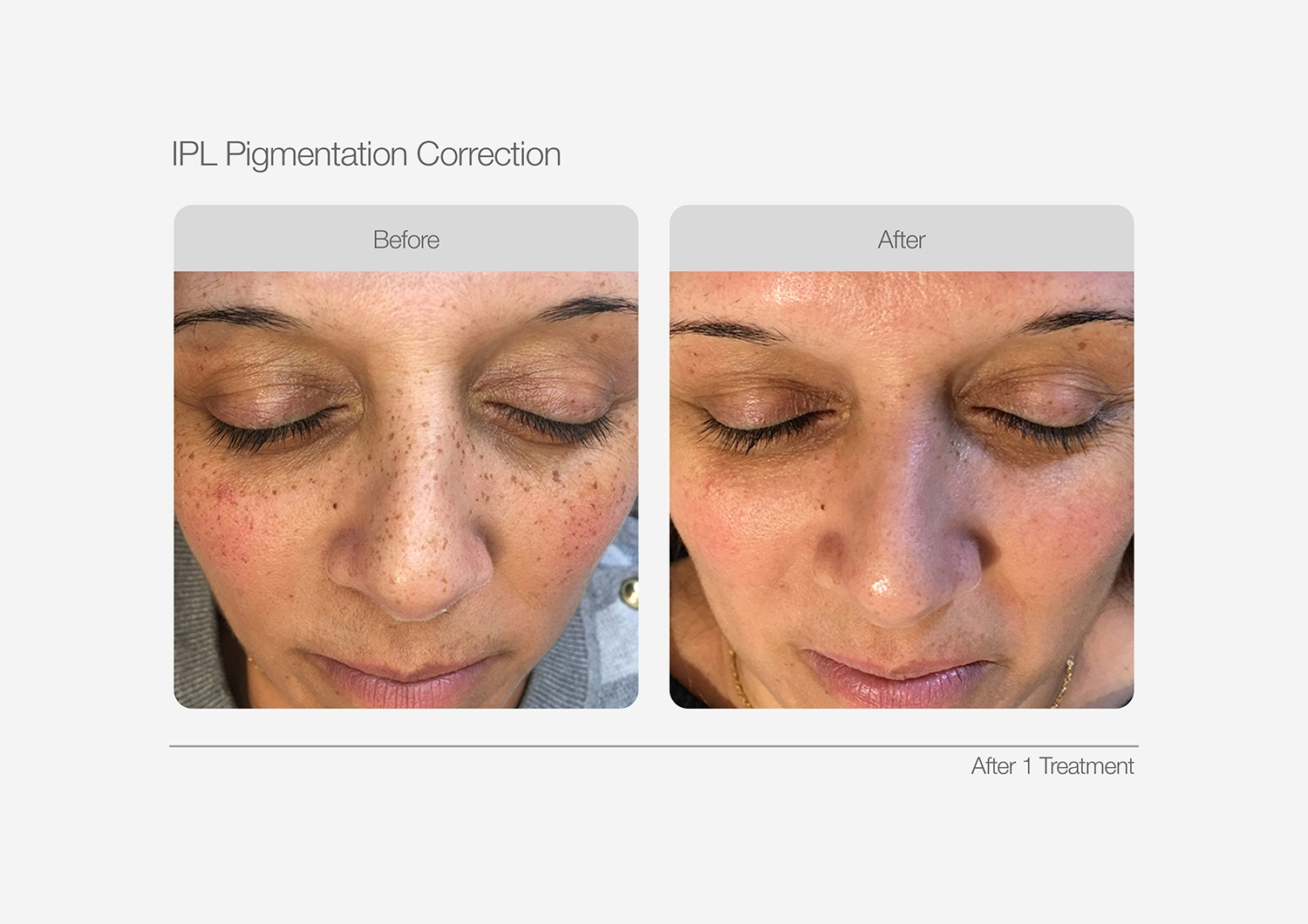 IPL-Pigmentation-Correction-Before-After-01