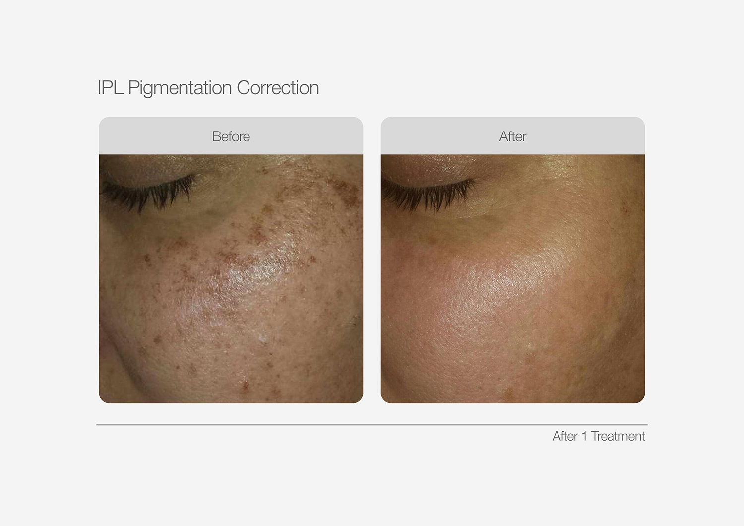 IPL-Pigmentation-Correction-Before-After-02