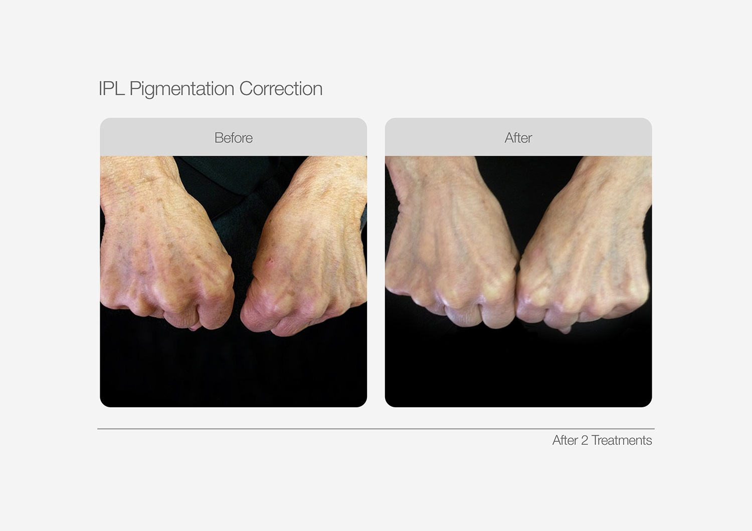 IPL-Pigmentation-Correction-Before-After-03
