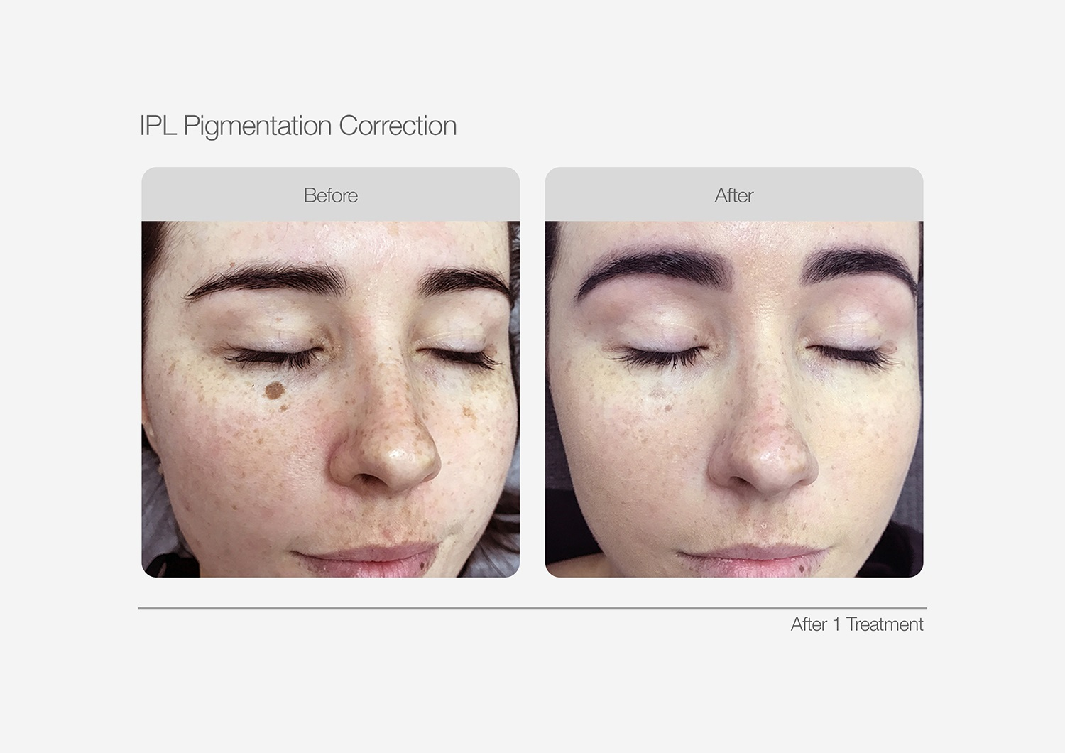 IPL-Pigmentation-Correction-Before-After-06