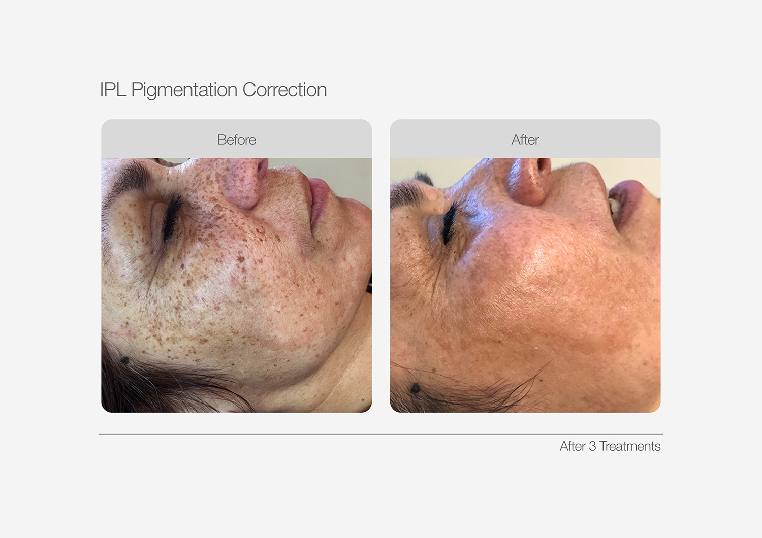 IPL-Pigmentation-Correction-Before-After-07