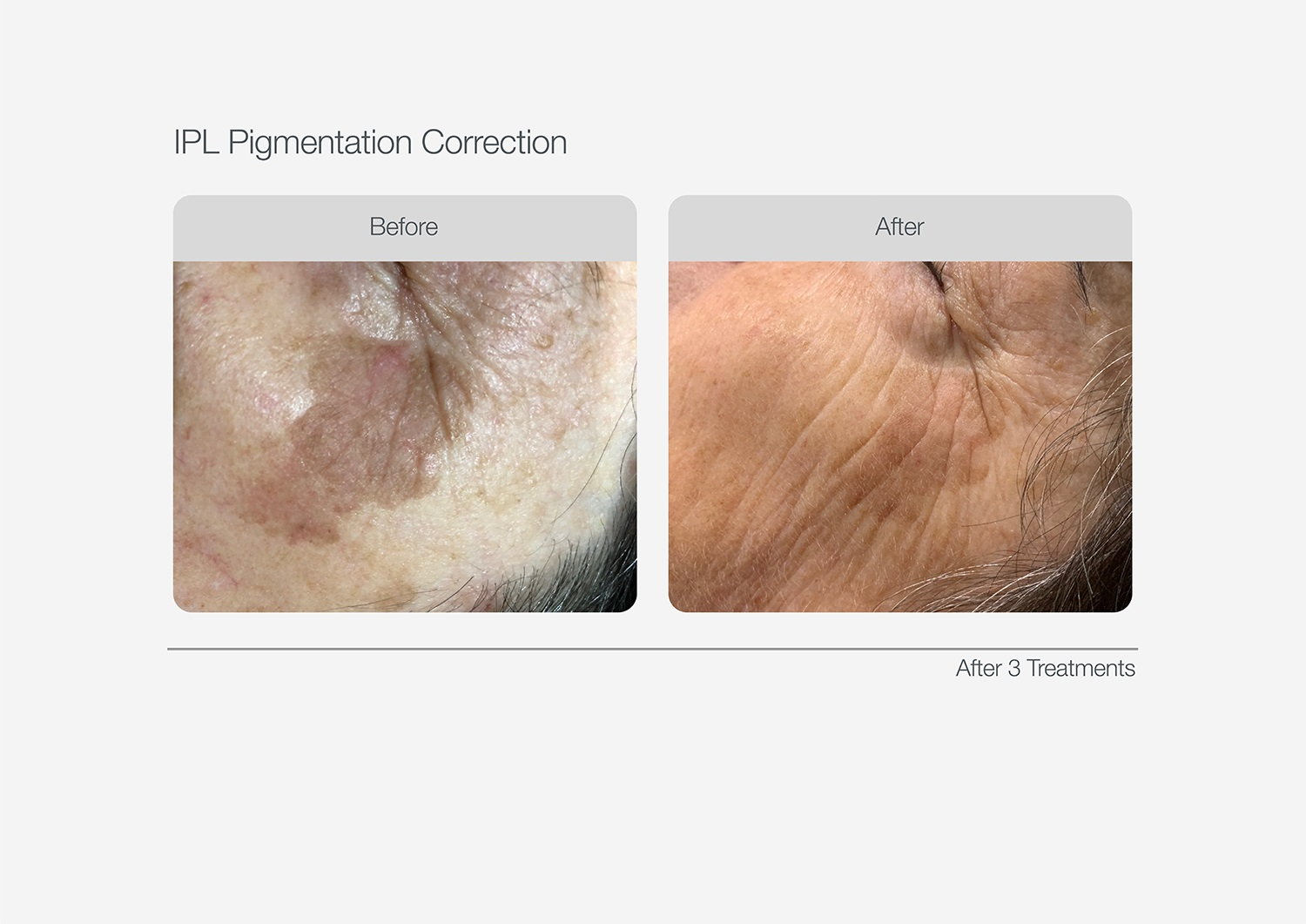 IPL-Pigmentation-Correction-Before-After-09