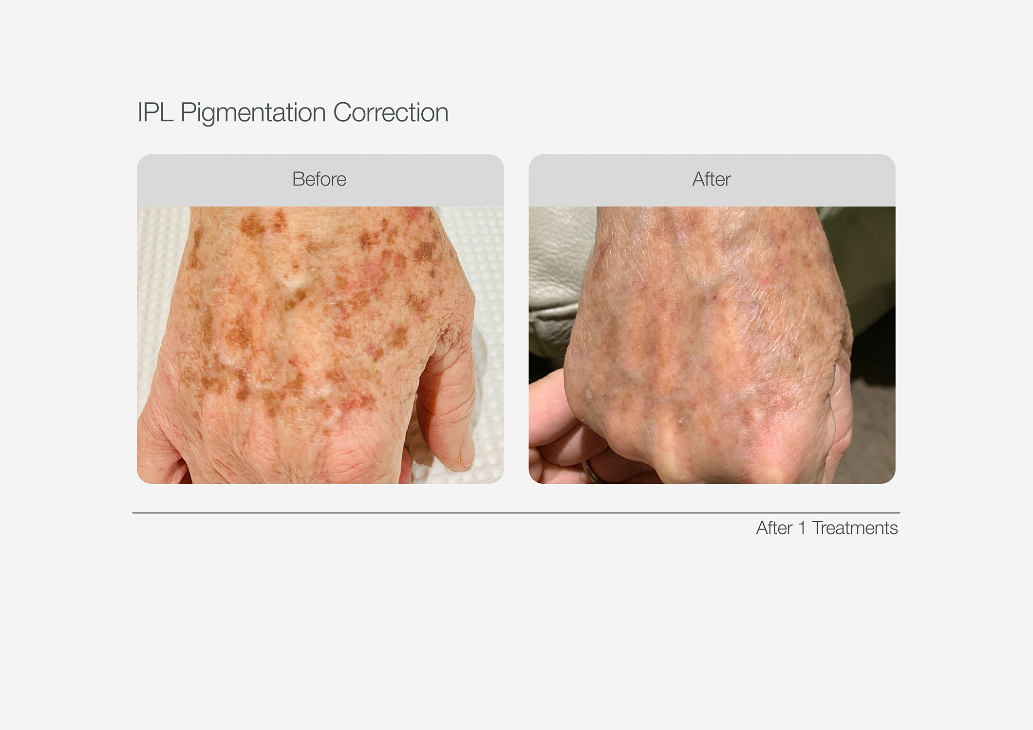 IPL-Pigmentation-Correction-Before-After-10