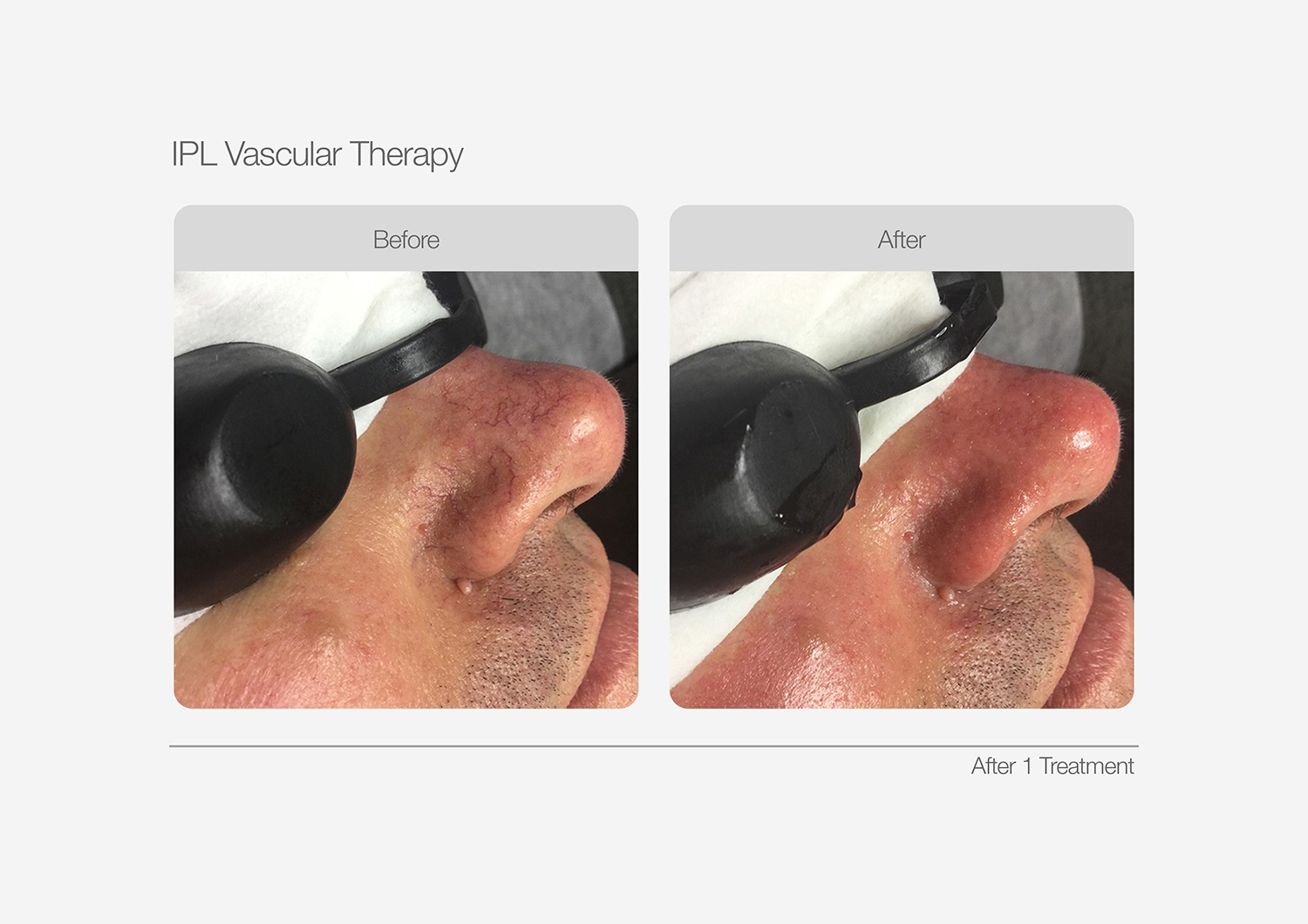 IPL-Vascular-Therapy-Before-After-01