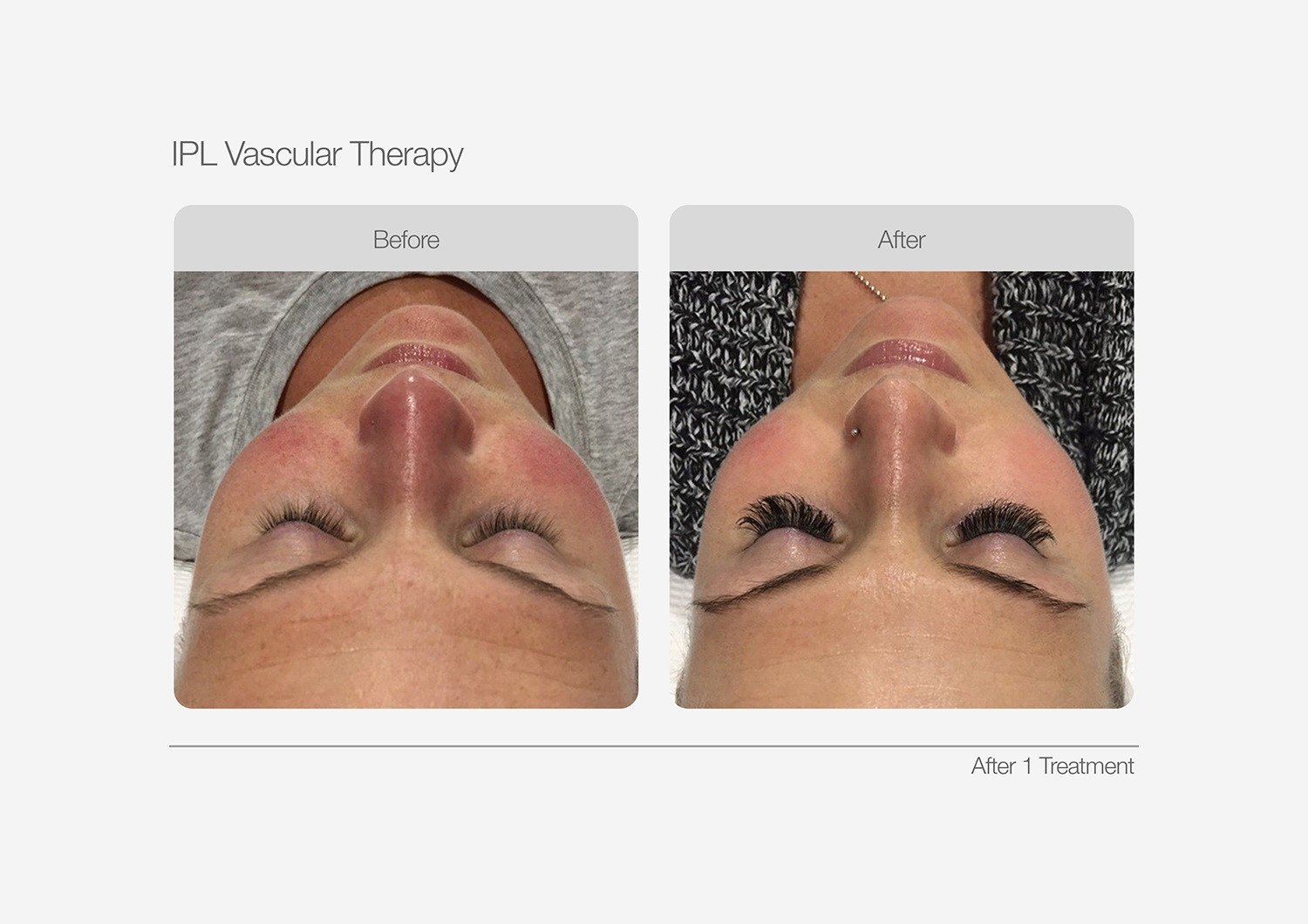 IPL-Vascular-Therapy-Before-After-03
