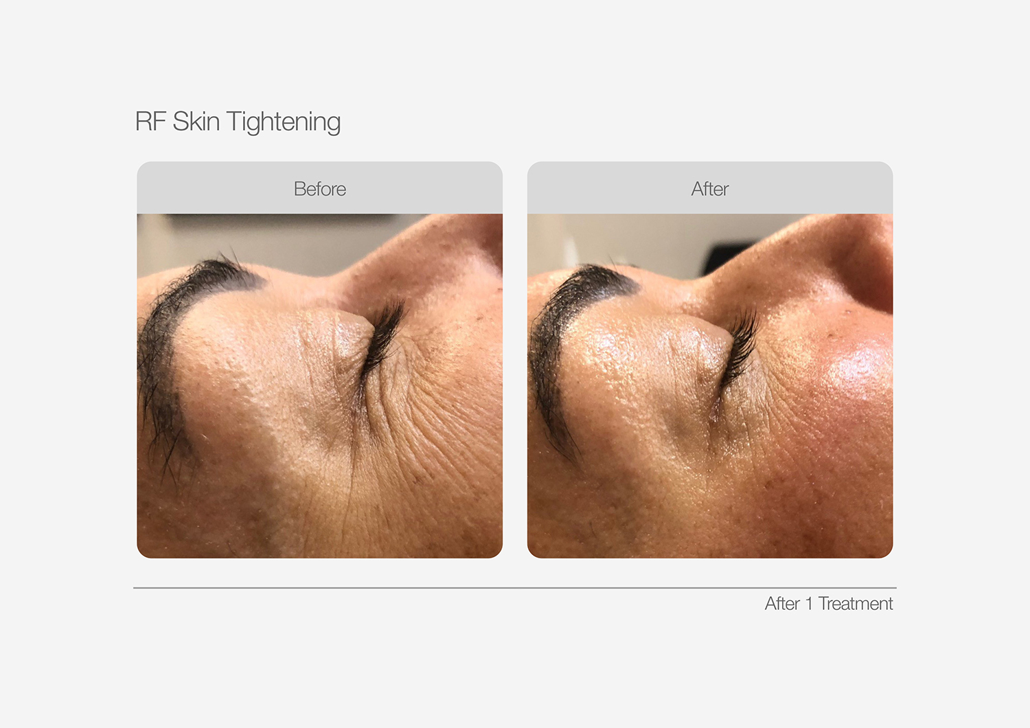 RF-Skin-Tightening-Before-After-03