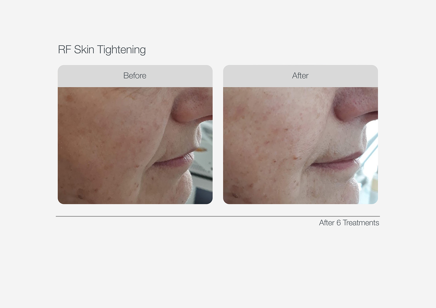RF-Skin-Tightening-Before-After-04