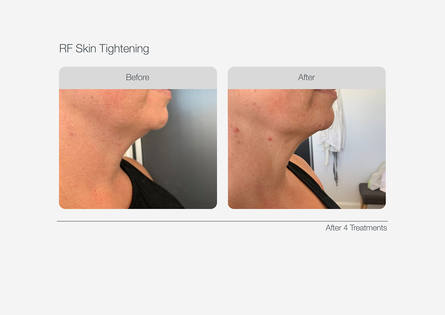 RF-Skin-Tightening-Before-After-05