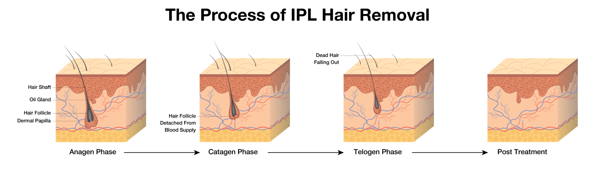 The-Process-of-IPL-Hair-Removal-Diagram-1920x586