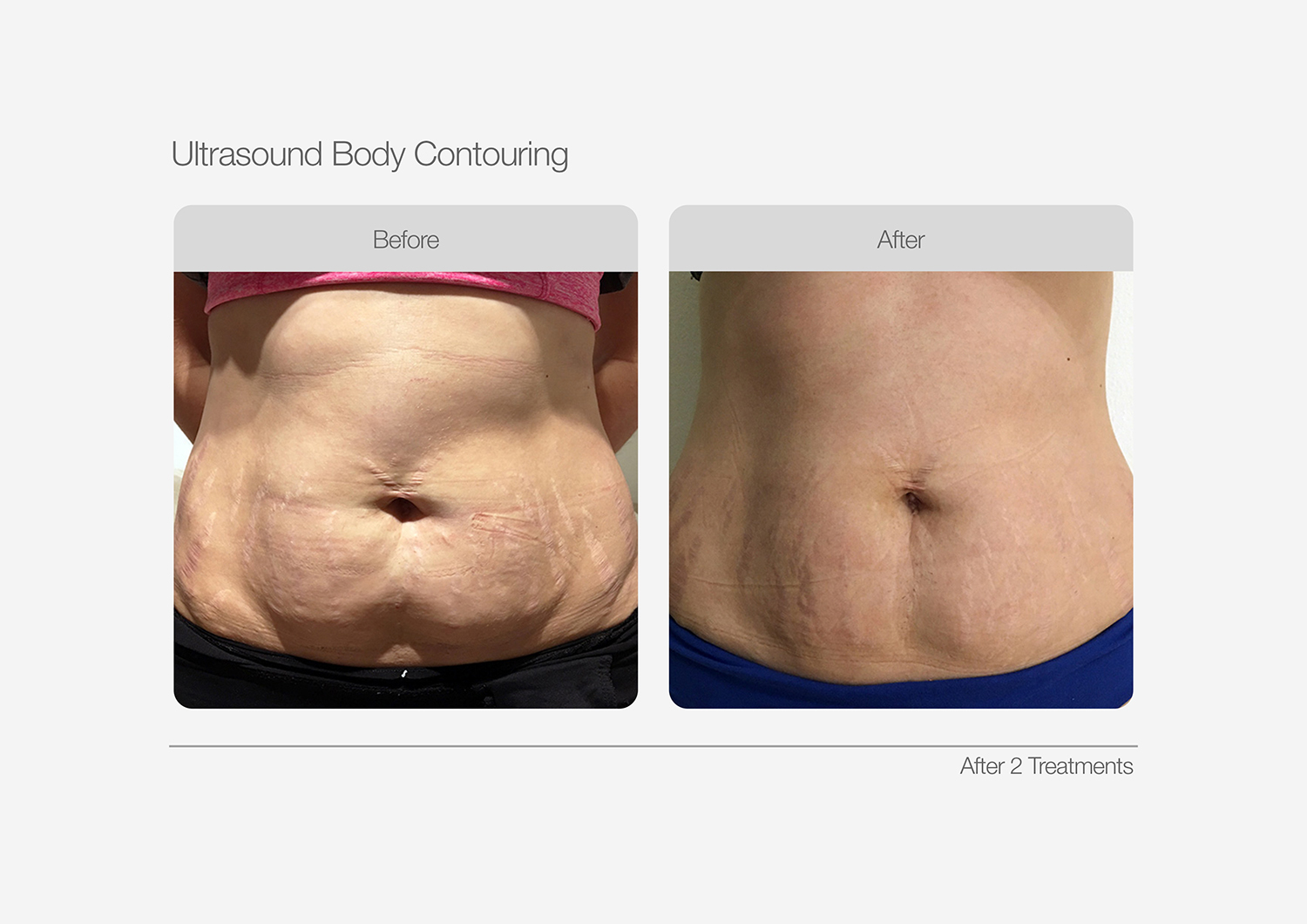 Ultrasound-Body-Contouring-Before-After-08