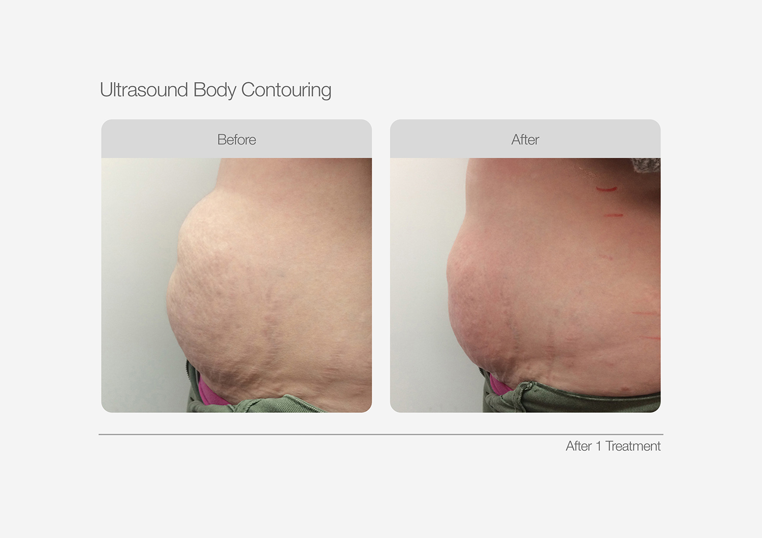 Ultrasound-Body-Contouring-Before-After-12